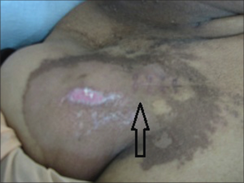 Figure 1: Aftermath of extravasation: Healing ulcer lateral to the port placement scar